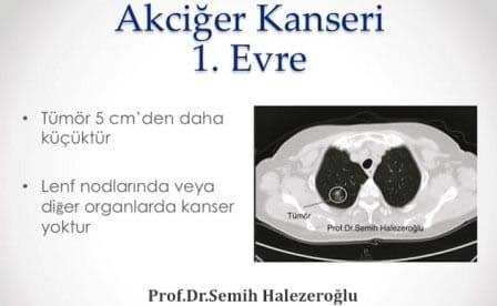 Tümör, 1. evre akciğer kanserinde 5cm'den küçüktür. Ayrıca birinci evrede sıçrama yoktur.