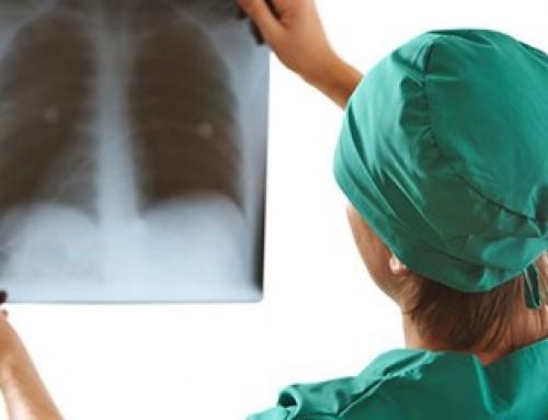 Akciğer Kanseri Tedavi Yöntemleri