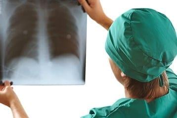 akciğer kanserinin tedavisi