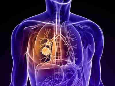 Akciğer kanseri hakkında önemli bilgiler